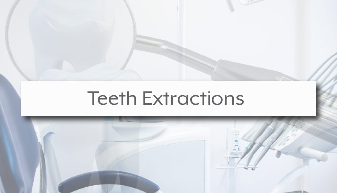 teeth extractions charlotte